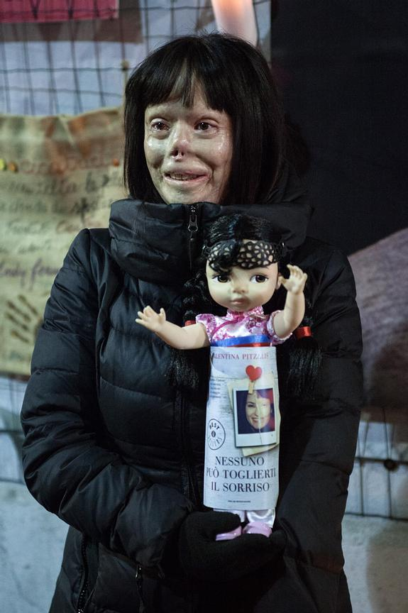 "Valentina Pitzalis; the doll in her hands says ""No-one can take your smile away from you""."
