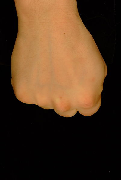 Comparison between normal colour and infrared to show veins on the dorsal surface of the hand.